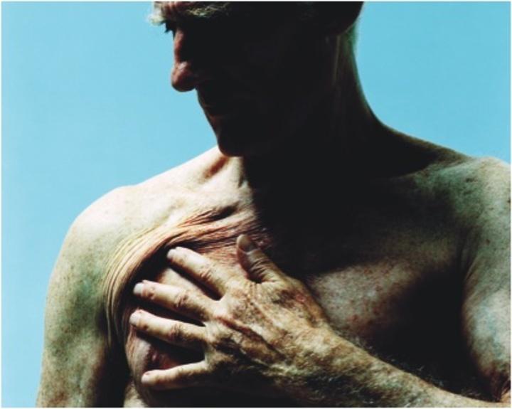 Η πρώτη αντιμετώπιση της στηθάγχης γίνεται με τη λήψη υπογλωσσίου χαπιού νιτρογλυκερίνης ή με ψεκασμό κάτω από τη γλώσσα με σπρέι νιτρογλυκερίνης
