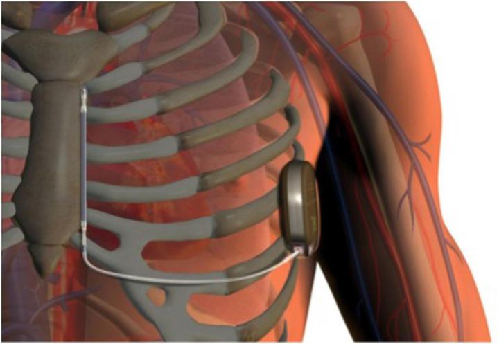 Ο απινιδωτής εμφυτεύεται στο στήθος κάτω από το δέρμα. Ο συγκεκριμένος απινιδωτής είναι τελευταίου τύπου γιατί δεν έχει καλώδια που να τον συνδέουν με την καρδιά