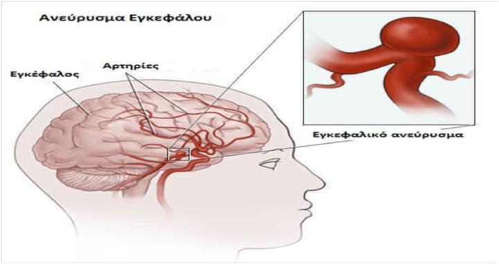 Τα ανευρύσματα του εγκεφάλου όπως και της αορτής θεωρούνται από τα πλέον επικίνδυνα για την ζωή του ανθρώπου