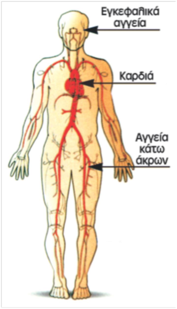 Η αθηροσκλήρωση δεν είναι τοπική νόσος. Δεν προσβάλλει μόνο τις αρτηρίες της καρδιάς, αλλά όλες τις αρτηρίες του σώματος, όπως δείχνουν τα βέλη και προκαλεί στενώσεις ή ανευρύσματα των αρτηριών