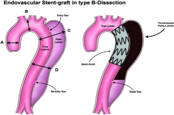 Διαχωριστικό ανεύρυσμα της αορτής όπου απεικονίζεται ο διαχωρισμός των τοιχωμάτων της αορτής ( C+D) στην εικόνα καθώς και η τοποθέτηση stent στη θεραπεία του