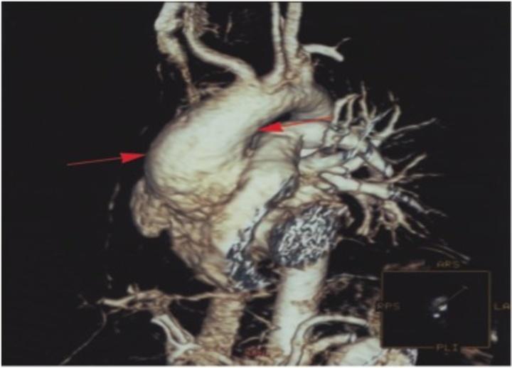 Πρόκειται για εικόνα μαγνητικής  τομογραφίας. Η διάγνωση του  ανευρύσματος της αορτής γίνεται με  μαγνητική ή αξονική τομογραφία.  Στην εικόνα τα βέλη δείχνουν  το ανεύρυσμα