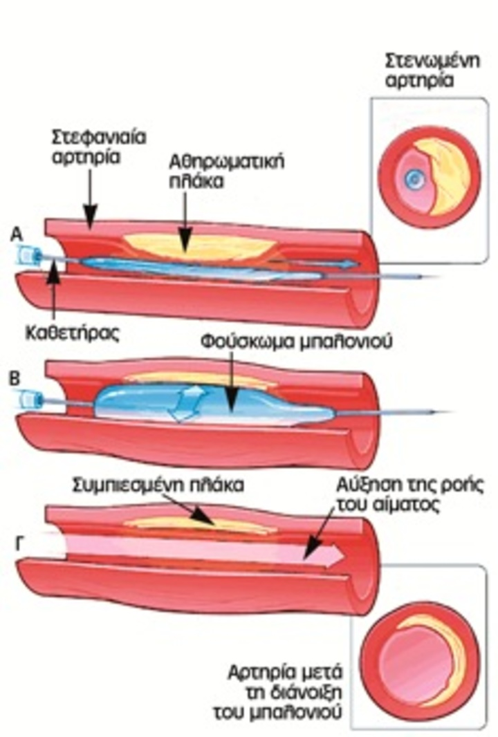 Κατά την αγγειοπλαστική η αθηροσκληρωτική πλάκα διασπάται και σφηνώνεται στο τοίχωμα της αρτηρίας. Έτσι, εξαλείφεται η στένωση στις αρτηρίες