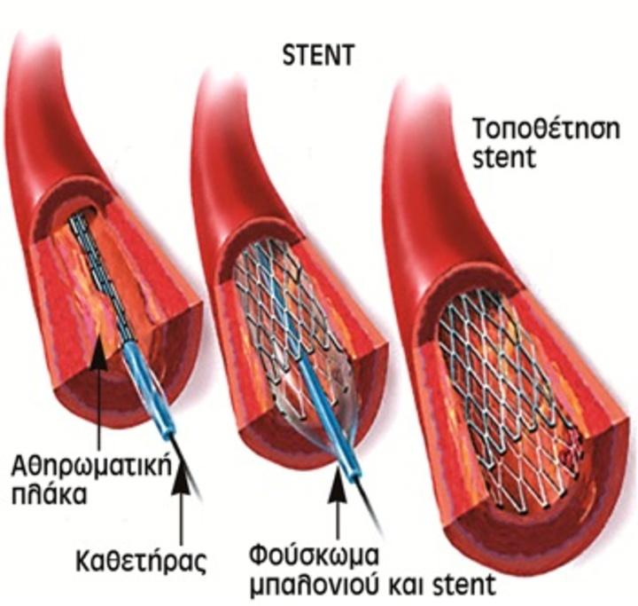 Το μεταλλικό πλέγμα (stent) τοποθετείται μετά το πέρας της αγγειοπλαστικής