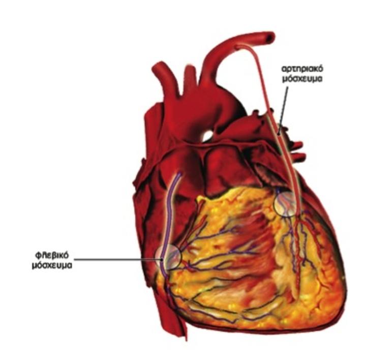 Η παράκαμψη των στενώσεων των στεφανιαίων αρτηριών της καρδιάς με αρτηριακά ή φλεβικά μοσχεύματα απεικονίζεται σε αυτή τη φωτογραφία. Η υπεροχή των αρτηριακών μοσχευμάτων συνίσταται στο ότι δεν προσβάλλονται από αθηροσκλήρωση σε αντίθεση με τα φλεβικά μοσχεύματα, κατά συνέπεια είναι καλύτερα