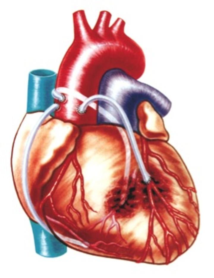 Το bypass  είναι η εγχείρηση καρδιάς που γίνεται για να παρακαμφθούν με φλέβες ή αρτηρίες οι στενωτικές βλάβες (βουλώματα των αρτηριών της καρδιάς). Στη φωτογραφία αυτή η παράκαμψη γίνεται με φλέβες