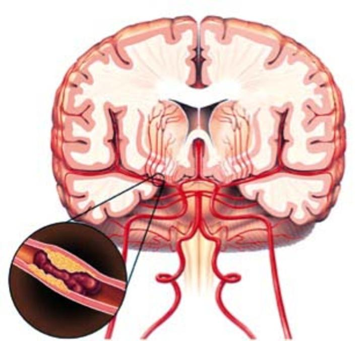 Η δημιουργία  του θρόμβου στα αγγεία του εγκεφάλου προκαλεί  εγκεφαλικό επεισόδιο. Στη φωτογραφία αριστερά και κάτω φαίνεται  η δημιουργία του θρόμβου μέσα στην αρτηρία.