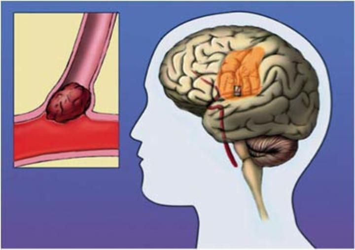 Η αποφραγμένη με θρόμβο από εμβολή αρτηρία του εγκεφάλου δημιουργεί το έφρακτο του εγκεφάλου δηλαδή το εγκεφαλικό επεισόδιο. Στη φωτογραφία αριστερά φαίνεται το έμβολο και δεξιά το έφρακτο του εγκεφάλου.