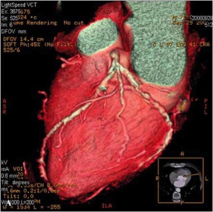 Στην αξονική στεφανιογραφία των στεφανιαίων αρτηριών  απεικονίζονται στενώσεις χωρίς ο άρρωστος να έχει κανένα απολύτως σύμπτωμα. Στις περιπτώσεις αυτές χρειάζεται εντατική  φαρμακευτική θεραπεία